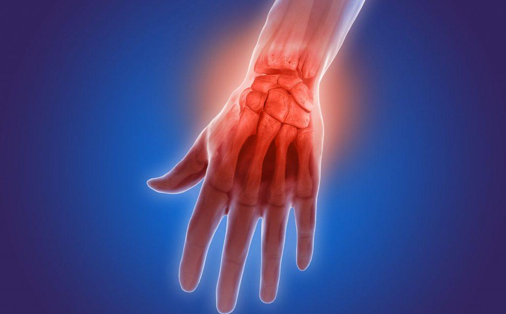 artritis-psoriasica-e1510581843742
