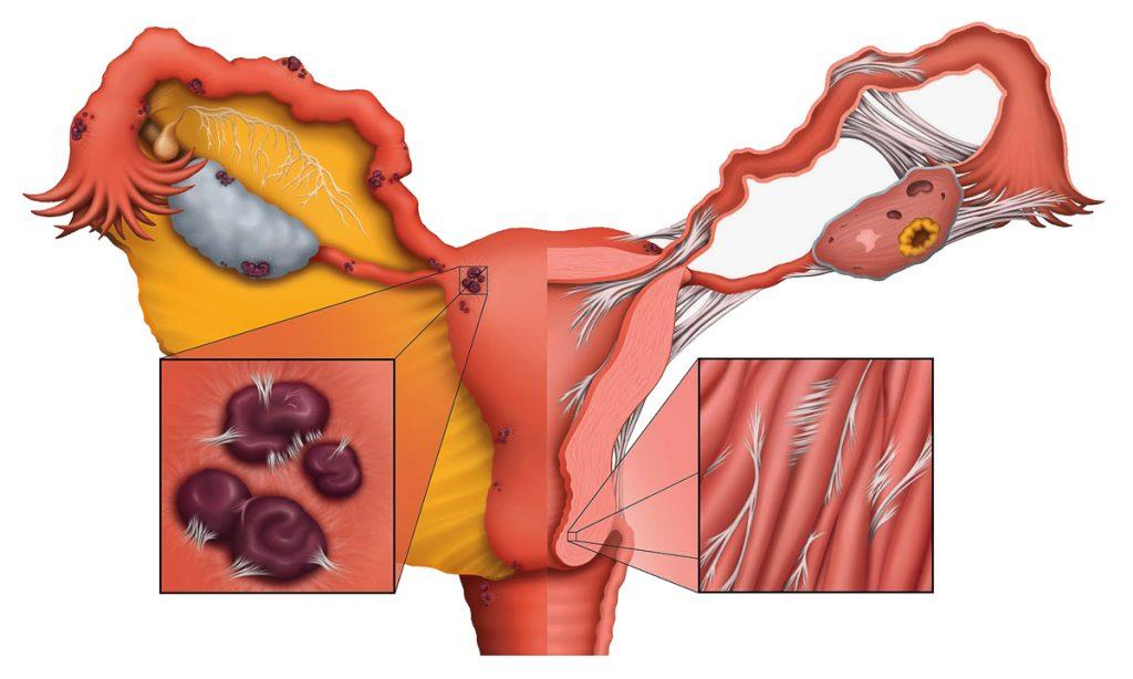 adherencias-por-endometriosis